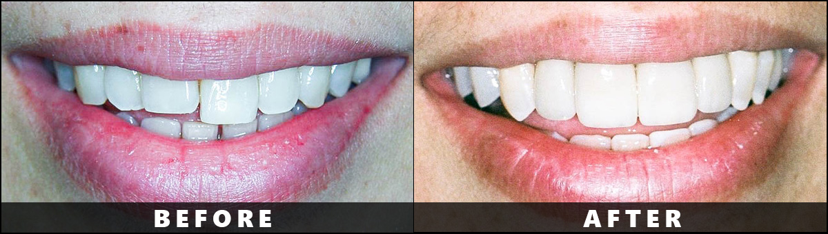 Dental Wellness Group – Before After  (1)