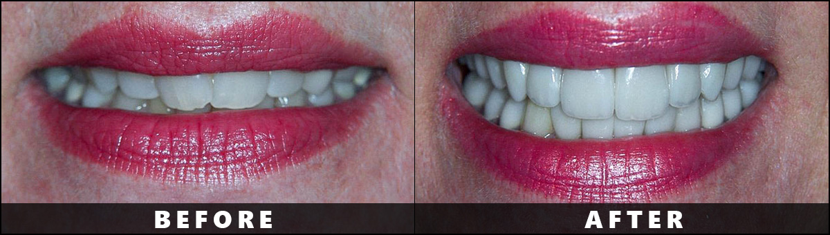 Dental Wellness Group – Before After  (3)