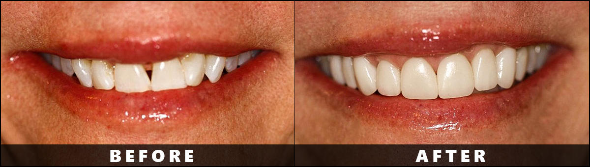 Dental Wellness Group – Before After  (4)