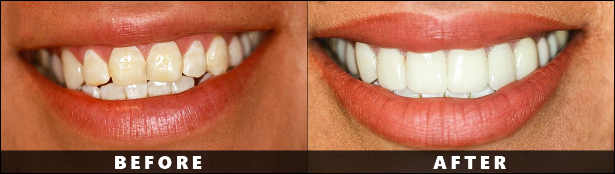 Dental Wellness Group – Before After  (5)